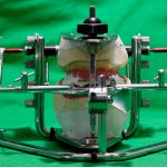 articulateur gerber pour prothèses myo-dynamique