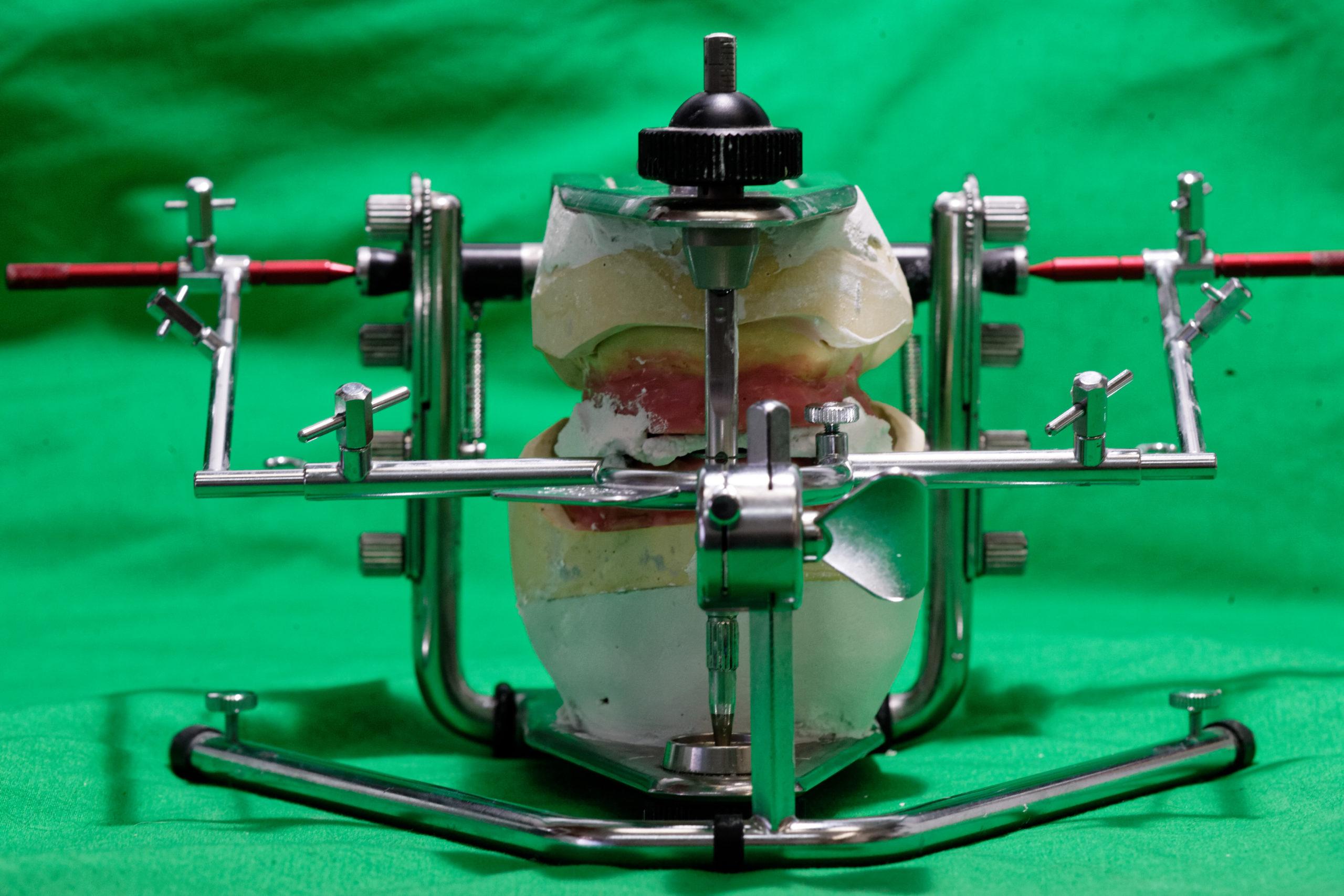 Prothèse Myo-Dynamique laboratoire